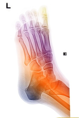 ankle and foot colorful image