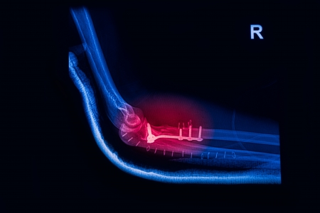roentgenogram: Fracture Elbow, forearm x-rays image showing plate and screw fixation Stock Photo