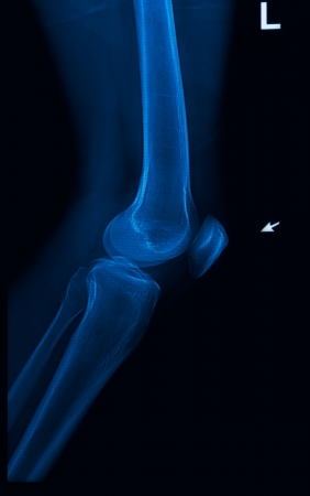 knee joint x-rays image vertical Stock Photo - 17115715