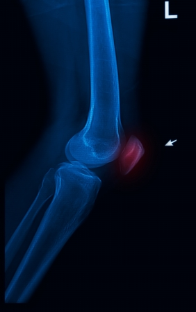 trauma knee joint x-rays image vertical Stock Photo - 17115714