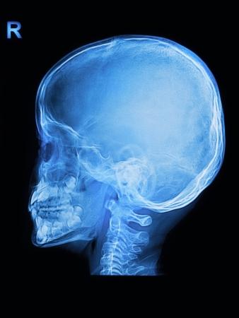 Children skull x-rays image vertical