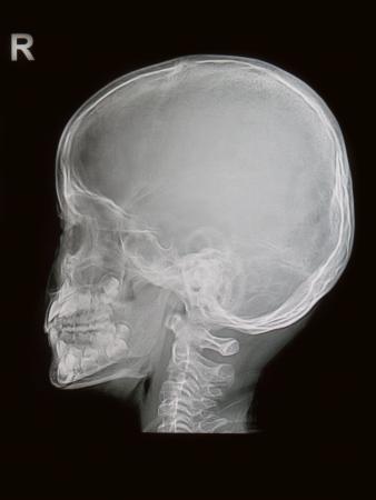 radiological: Children skull x-rays image