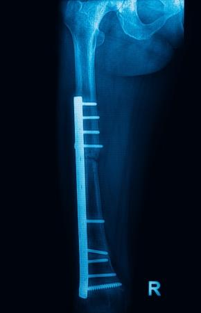 pathologic: Fracture femur, femur x-rays image showing plate and screw fixation