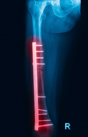 pathologic: Fracture femur, femur x-rays image showing plate and screw fixation