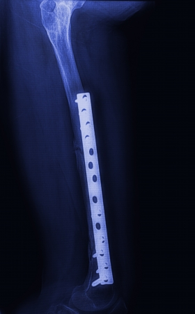 Fracture femur, femur x-rays image showing plate and screw fixation Stock Photo - 17115723