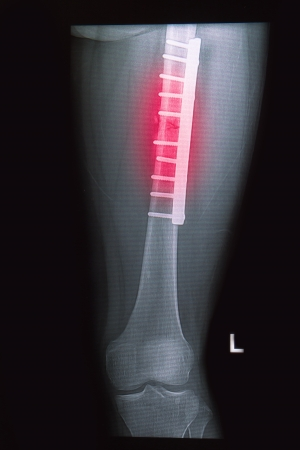 upper leg: broken human thigh x-rays image with implant ( plate and screw ) Stock Photo