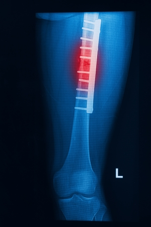 pathologic: broken human thigh x-rays image with implant ( plate and screw ) Stock Photo