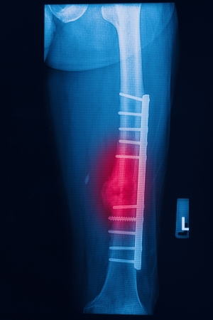 broken human thigh x-rays image with implant ( plate and screw ) Stock Photo - 17115738