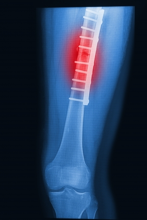 femoral: broken human thigh x-rays image with implant ( plate and screw ) Stock Photo