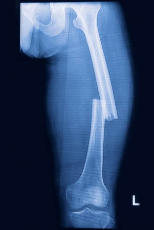 broken human thigh x-rays image ,lelf leg fracture