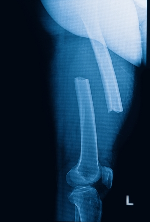 radiographic: broken human thigh x-rays image ,lelf leg fracture