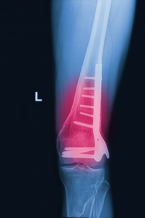 broken human thigh x-rays image with implant ( plate and screw ),fracture  lelf  leg Stock Photo - 17115729