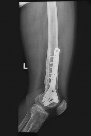 pathologic: broken human thigh x-rays image with implant ( plate and screw ),fracture  lelf  leg