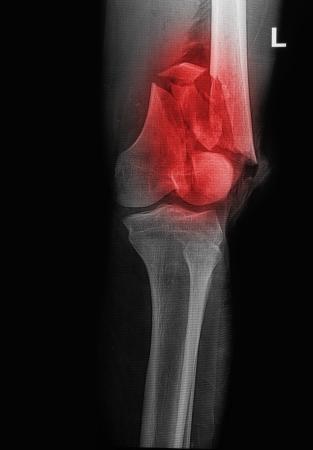broken human thigh x-rays image ,lelf leg fracture Stock Photo - 17125898