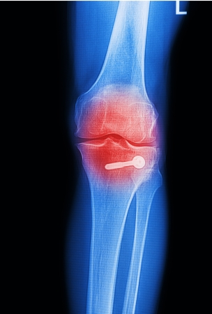 x ray image painful of knee joint Stock Photo - 17125921