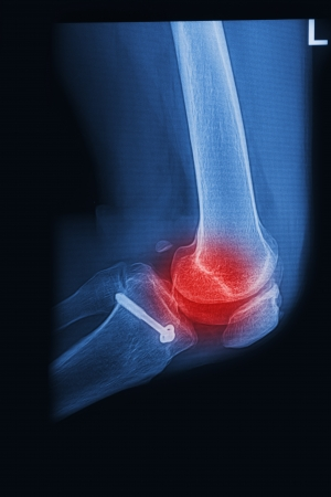 radiographic: X Rays image  broken knee joint with implant,Image x-rays painful of knee joint  Stock Photo