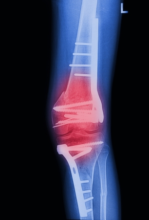 broken knee: X Rays image  broken knee joint with implant,Image x-rays painful of knee joint Stock Photo