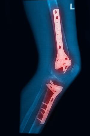 Rayos X del muslo y la pierna rota la imagen con el implante, Imagen de rayos X dolorosa de la pierna lelf Foto de archivo - 17125909