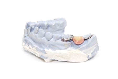 Dental prosthesis on gypsum model plaster photo