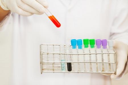 mano de un científico toma una muestra de sangre la mano que sostiene un tubo de prueba tubo