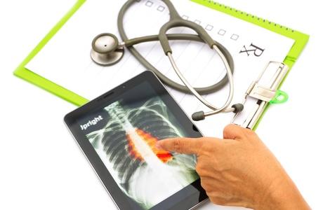 Dokter x-ray borst kijken op tablet voor medische examen beeld op het scherm is auteursrechtelijk beschermd door mij