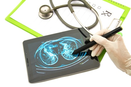 x ray equipment: Doctor looking chest  x-ray image on tablet for medical exam Image on screen is copyrighted by me  Stock Photo