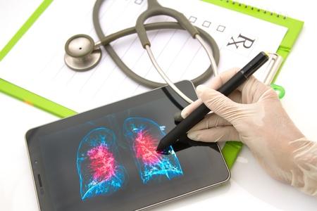 Doctor que mira una radiograf�a de t�rax en la tabla de imagen para el examen m�dico (imagen en la pantalla es propiedad intelectual de m�) Foto de archivo