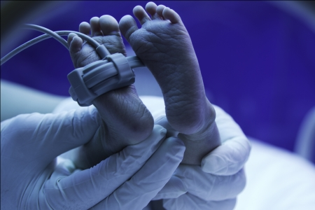 ultraviolet: Newborn baby under ultraviolet lamp in the incubator,Doctor s hand care for a sick new born  in the pediatric ICU Stock Photo
