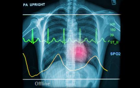 Abstract health and medical backgrounds showing x-ray image and EKG line photo