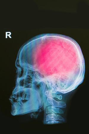 x-ray image of human skull show head injury photo