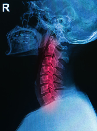 X-ray human skull and spine   cervical spine   show cervical injury photo