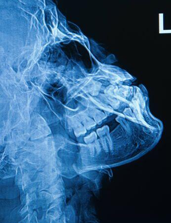 mandible: x-ray image of human skull show fracture  parasymphysis of mandible