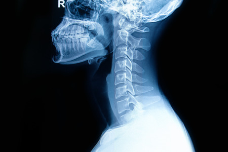 X-ray of  human cervical spine Stock Photo