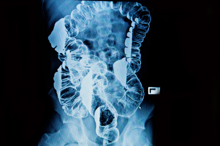 barium enema of a man demonstrated the normal rectum and cecum