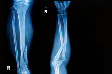 leg pain: x-ray image  show fracture both bone of leg  and fracture shaft of ulnar of forearm Stock Photo