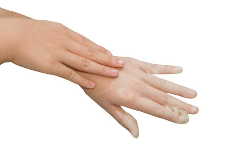 paraffine: spa handverzorging en schoonheid, Hand in paraffine bad, vrouw ontvangen warmte therapie op handen