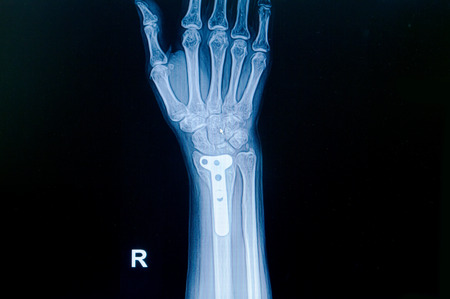 distal: Fractura de mu�eca de rayos x de Cine: mostrar la fractura distal del radio (hueso del antebrazo) con placa insertada Foto de archivo