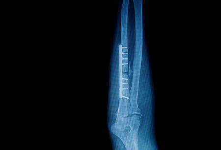 fracture forearm with  internal fixed by plate and screw photo