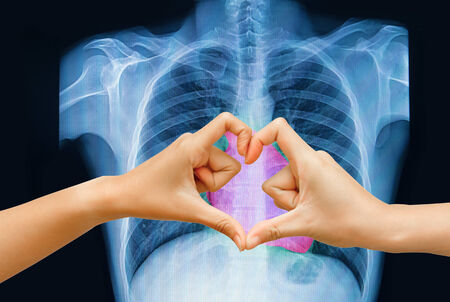 Hand make a heart shape on chest x-ray image photo