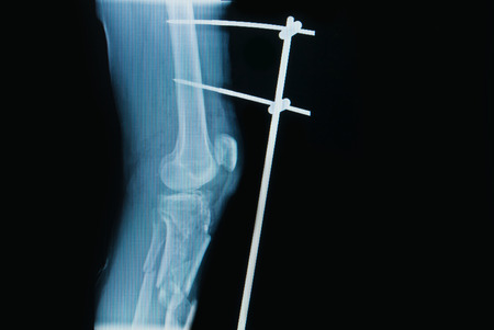 tibia: x-ray image of fracture leg   tibia  with implant external fixation Stock Photo