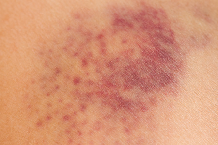 傷ついた女性の脚の皮膚にあざをクローズ アップ