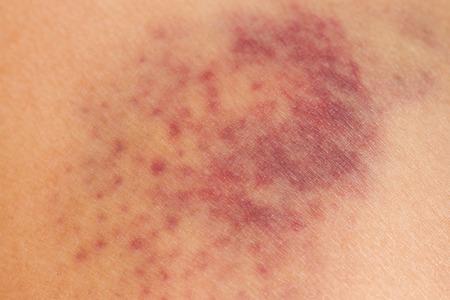 상처 입은 여자의 다리 피부에 근접 촬영 타박상 스톡 콘텐츠