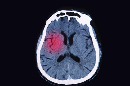 brain injury: magnetic resonance image (MRI) of the brain show brain injury Stock Photo