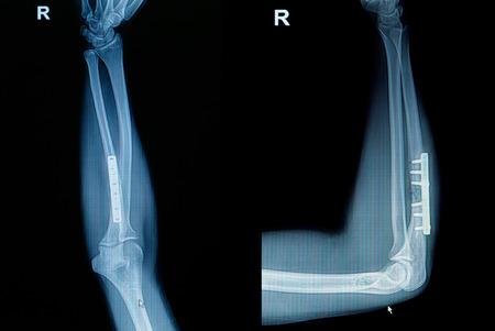 raggio: Film x-ray avambraccio polso frattura spettacolo frattura del radio ossea