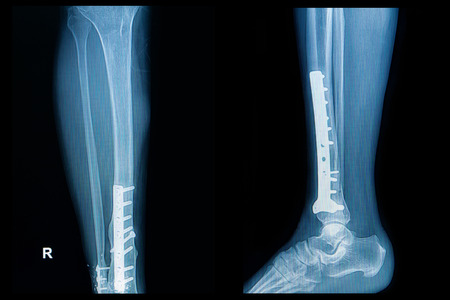 dislocation: x-ray image of fracture leg  tibia  with implant plate and  screw