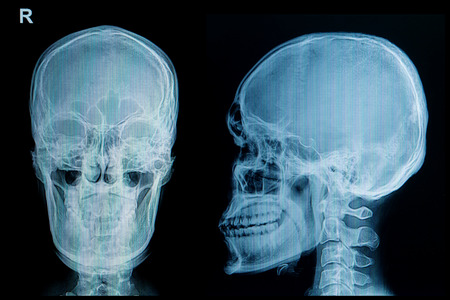 roentgen: X-ray picture of the skull injury Stock Photo