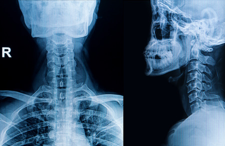 x-ray image of cervical spine, neck x-ray image photo