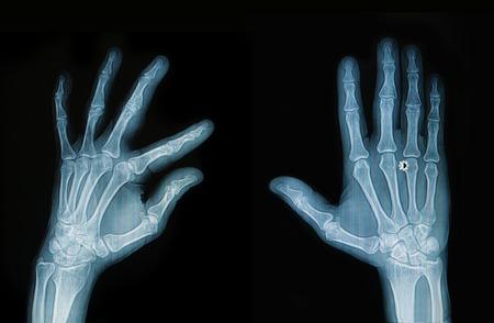 thumb x ray: X-ray hand and finger Stock Photo