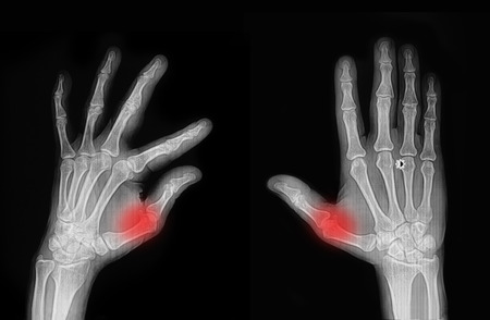 middle joint: X-ray hand and finger Stock Photo