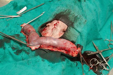 endometrium:  Surgery of pyometra (uterus infection) in the dog